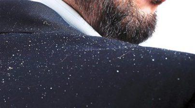 1 1 404x224 - موثرترین روشهای جلوگیری از شوره مو